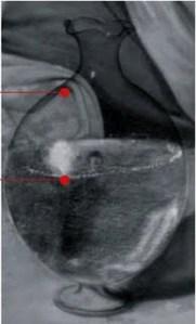 Caravage 1597 Bacchus detail reflectographie