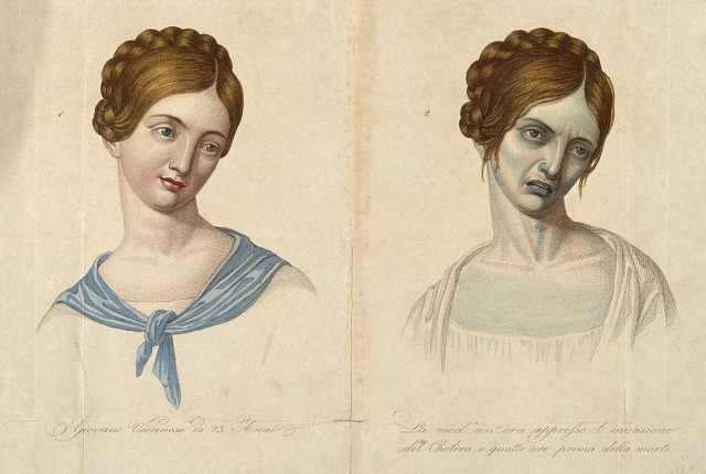 A young Venetian woman, aged 23, depicted before and after contracting cholera. Coloured stipple engraving. Courtesy of Wellcome Library, London