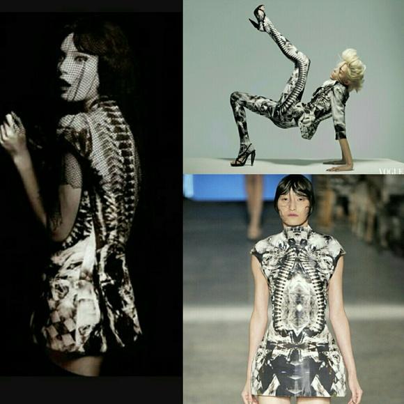 Skeleton dress Alexander McQueen 2009
